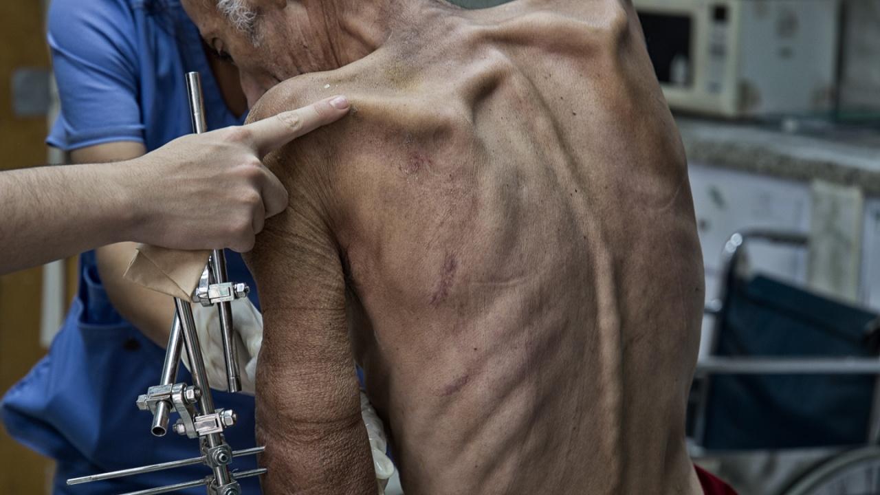 Public Health in Venezuela