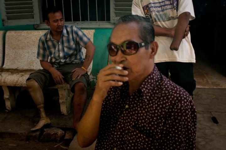 Cambodia landmine victim