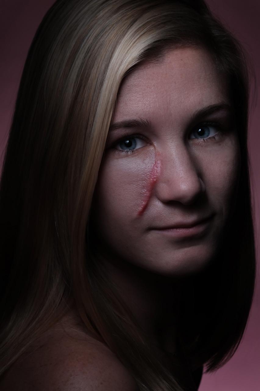 Portrait of Cancer Survivor Hailey Brown