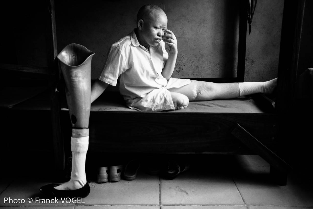 Albinos in Tanzania