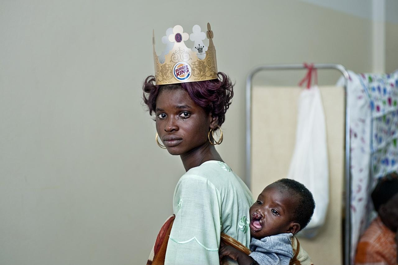 Operation Smile, Senegal.
